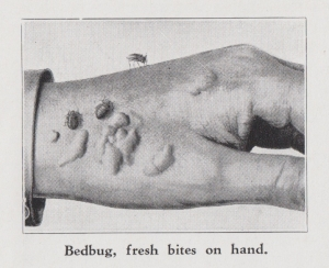Bedbugs bite a human hand, leaving itchy welts. From Hugo Hartnack, 202 Common Household Pests of North America. Chicago: Hartnack Publishing, 1939
